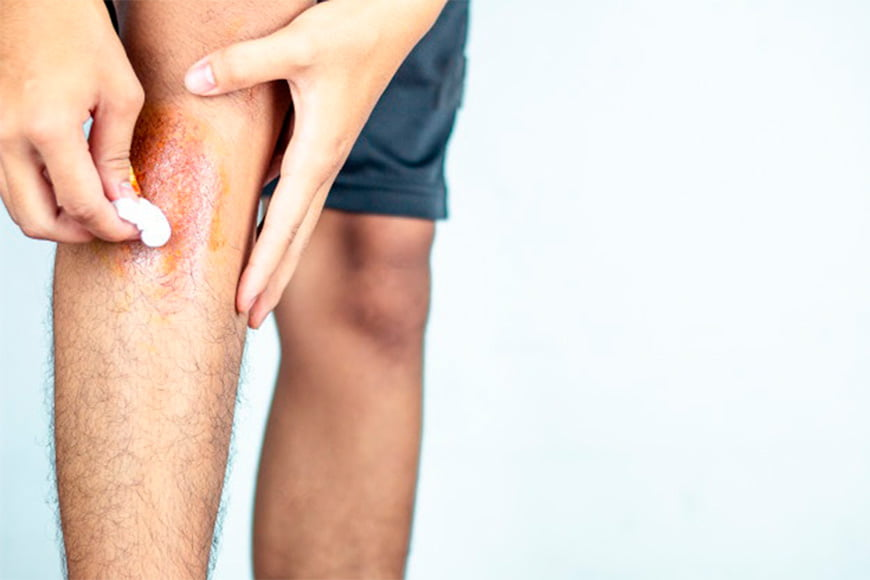 Man wiping burn on his leg with a cotton wool ball.